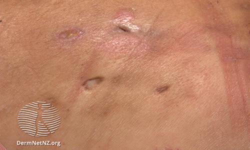 HS Scars